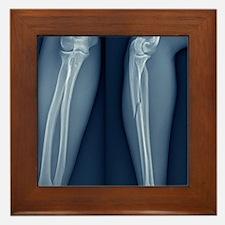 Broken arm, X-ray Framed Tile