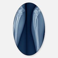 Broken arm, X-ray Sticker (Oval)