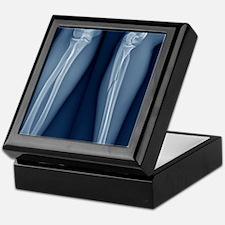 Broken arm, X-ray Keepsake Box