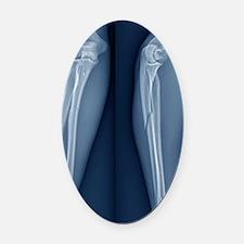 Broken arm, X-ray Oval Car Magnet