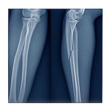 Broken arm, X-ray Tile Coaster