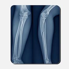 Broken arm, X-ray Mousepad
