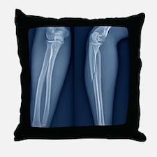 Broken arm, X-ray Throw Pillow