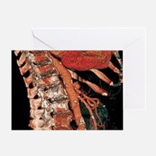 Abdominal aorta and spine, 3D CT sca Greeting Card