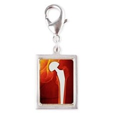 Total hip replacement, X-ray Silver Portrait Charm