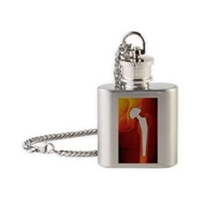 Total hip replacement, X-ray Flask Necklace