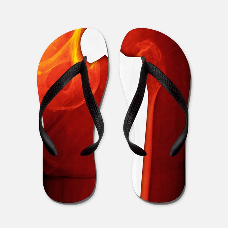 Total hip replacement, X-ray Flip Flops