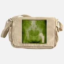 Total hip replacement, X-ray Messenger Bag