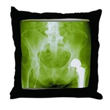 Total hip replacement, X-ray Throw Pillow