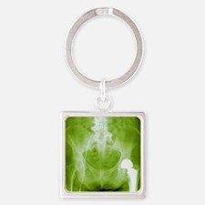 Total hip replacement, X-ray Square Keychain