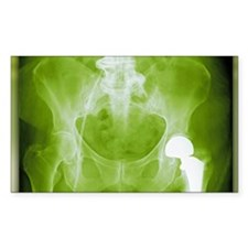 Total hip replacement, X-ray Decal