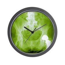 Total hip replacement, X-ray Wall Clock