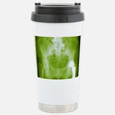 Total hip replacement, X-ray Travel Mug