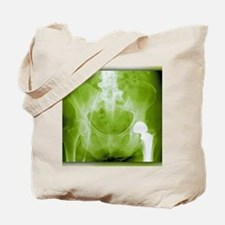 Total hip replacement, X-ray Tote Bag