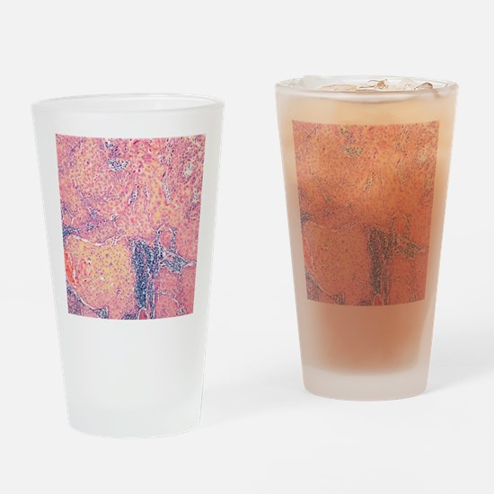 Tongue cancer, light micrograph Drinking Glass