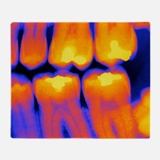 Teeth with fillings, X-ray Throw Blanket