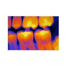 Teeth with fillings, X-ray Rectangle Magnet