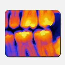 Teeth with fillings, X-ray Mousepad
