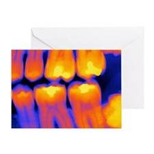 Teeth with fillings, X-ray Greeting Card