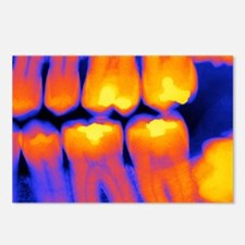 Teeth with fillings, X-ra Postcards (Package of 8)