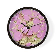 Thyroid gland, SEM Wall Clock