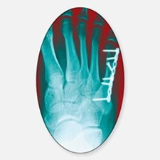 Pinned foot bone fracture, X-ray Decal