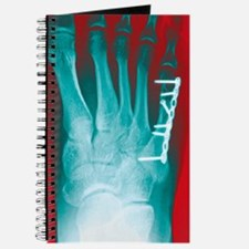 Pinned foot bone fracture, X-ray Journal