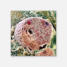 "Pancreas cell, SEM Square Sticker 3"" x 3"""
