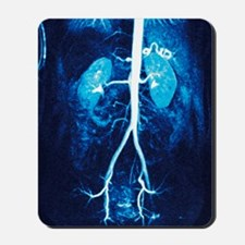 Normal renal arteries, MRA scan Mousepad