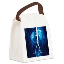 Normal renal arteries, MRA scan Canvas Lunch Bag