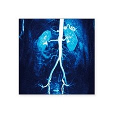 "Normal renal arteries, MRA  Square Sticker 3"" x 3"""
