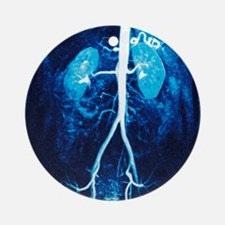 Normal renal arteries, MRA scan Round Ornament
