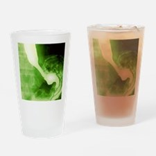 Normal oesophagus and stomach, X-ra Drinking Glass