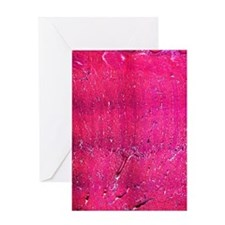 Tongue section, light micrograph Greeting Card