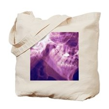 Normal lower jaw, X-ray Tote Bag