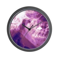 Normal lower jaw, X-ray Wall Clock