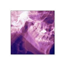 "Normal lower jaw, X-ray Square Sticker 3"" x 3"""