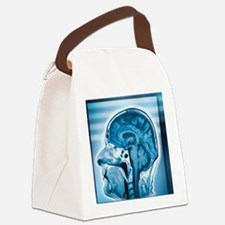 Normal head and brain, MRI scan Canvas Lunch Bag