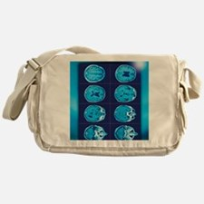 Normal brain, CT scans Messenger Bag