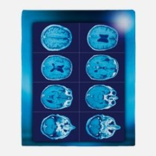 Normal brain, CT scans Throw Blanket