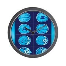 Normal brain, CT scans Wall Clock