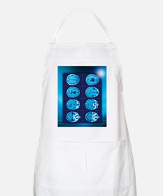 Normal brain, CT scans Apron
