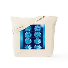 Normal brain, CT scans Tote Bag