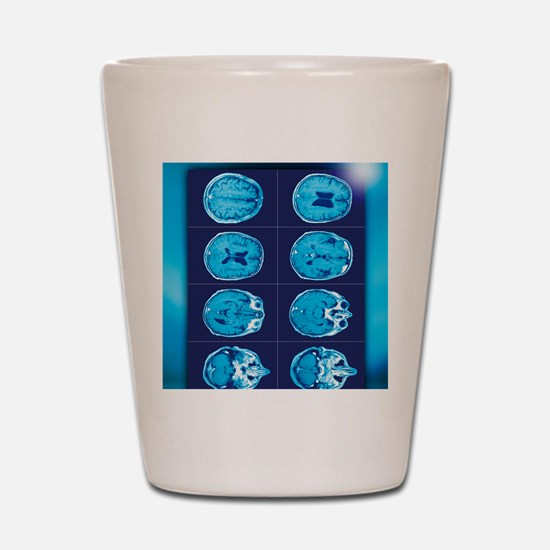 Normal brain, CT scans Shot Glass