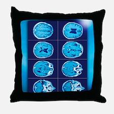 Normal brain, CT scans Throw Pillow