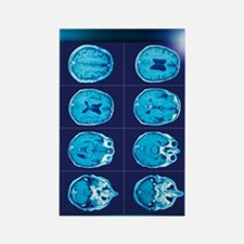 Normal brain, CT scans Rectangle Magnet