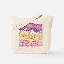 Neurofibroma, light micrograph Tote Bag