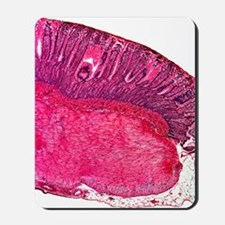 Stomach section, light micrograph Mousepad