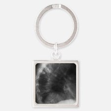 Spine in bone marrow cancer, X-ray Square Keychain