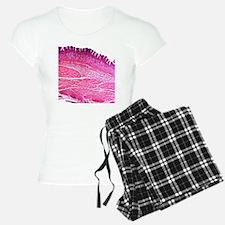 Small intestine section, li Pajamas